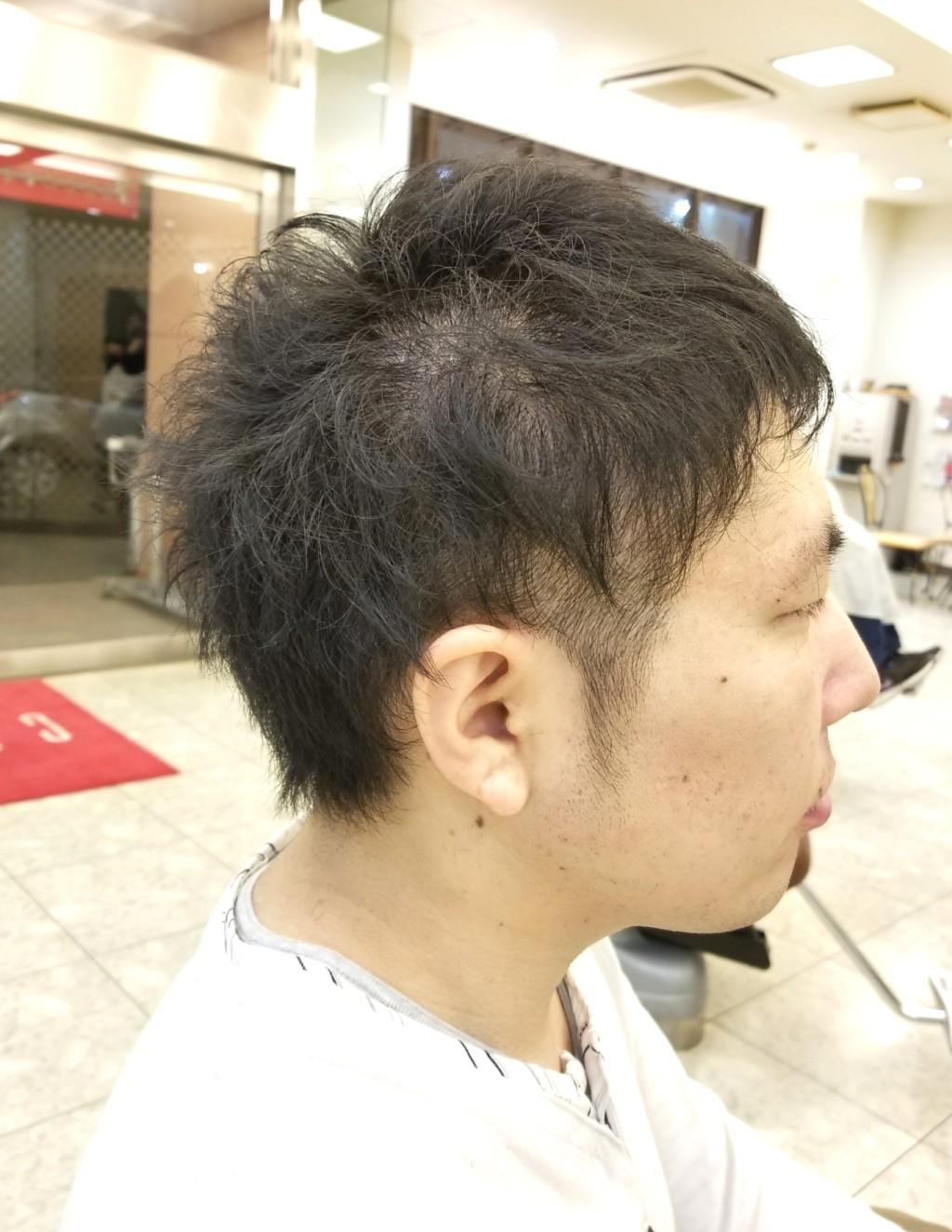 クセでボリューム出やすい髪質でも、ハチ張りカバーとツーブロックでカッコよく!!